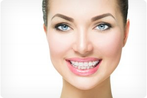 clear braces in dublin and tracy ca