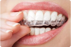 invisalign in dublin and tracy ca
