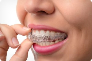 elite invisalign provider in dublin and tracy ca