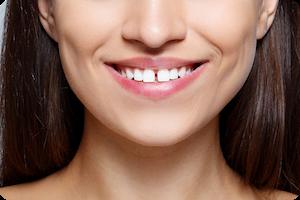 tracy orthodontist
